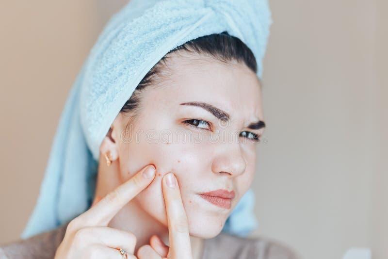 Девочка-подросток сжимая ее цыпки, извлекая цыпк от ее стороны Фото концепции заботы кожи женщины некрасивой девушки кожи проблем стоковое изображение rf