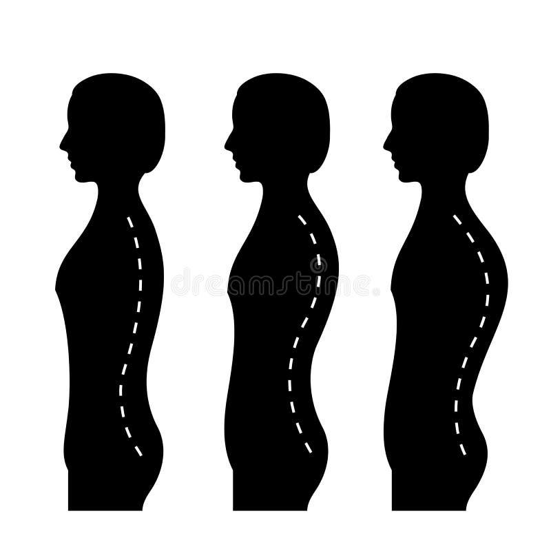 Ð-¡ urvature av ryggen vektor illustrationer