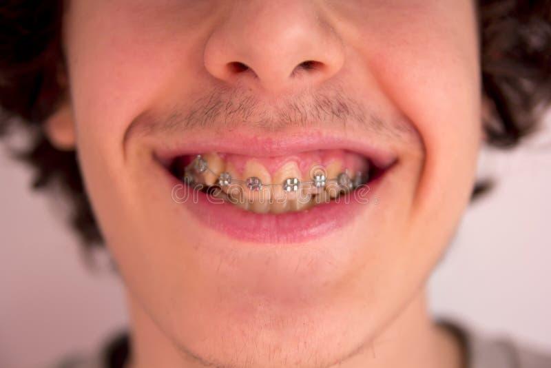 Счастливое предназначенное для подростков с расчалками, Orthodontics стоковое фото