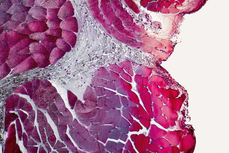 Órgãos microscópicos do pescoço fotografia de stock royalty free