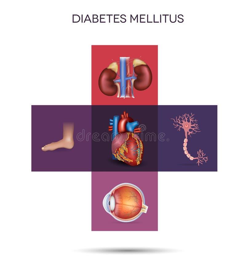 Órganos afectados mellitus de la diabetes stock de ilustración