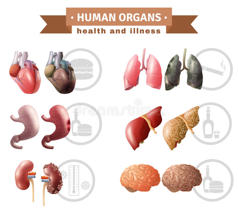 Órganos humanos Heath Risks Medical Poster ilustración del vector