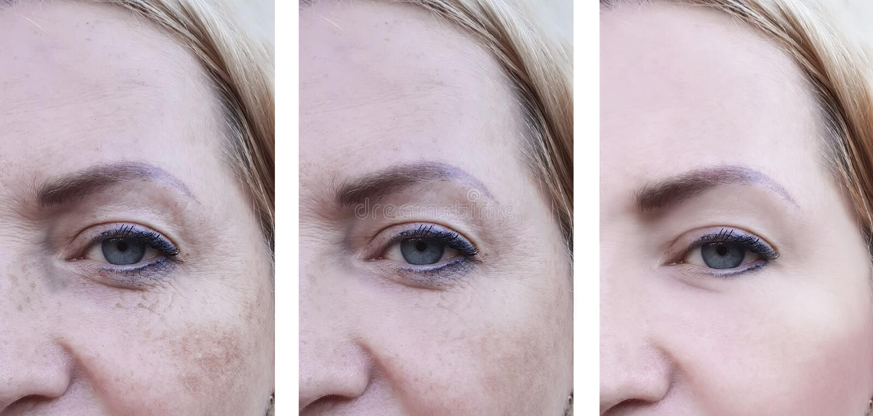 Ögonkvinnaframsidan rynkar pigmentering, vård- tillvägagångssätt för patienten före och efter fotografering för bildbyråer