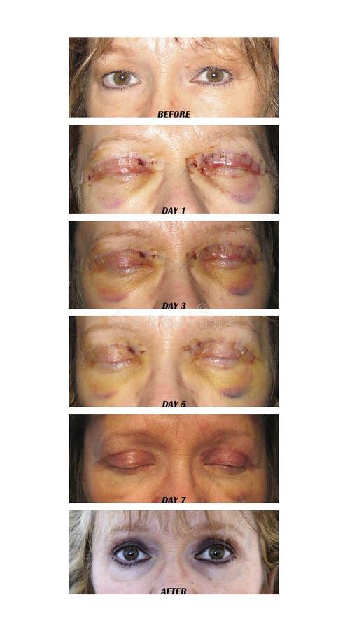 ögonlockkirurgi arkivfoton