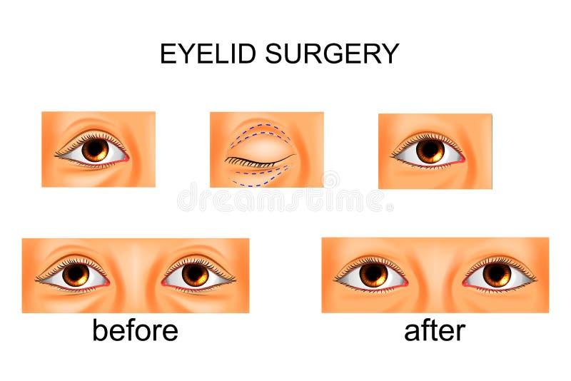 Ögonlockkirurgi, plastikkirurgi vektor illustrationer