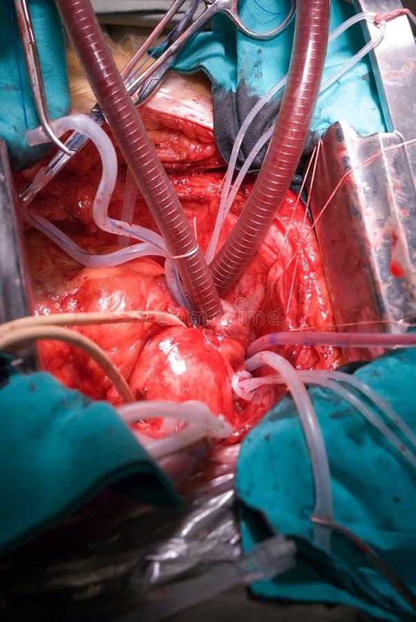 öppen kirurgi för hjärta arkivfoton
