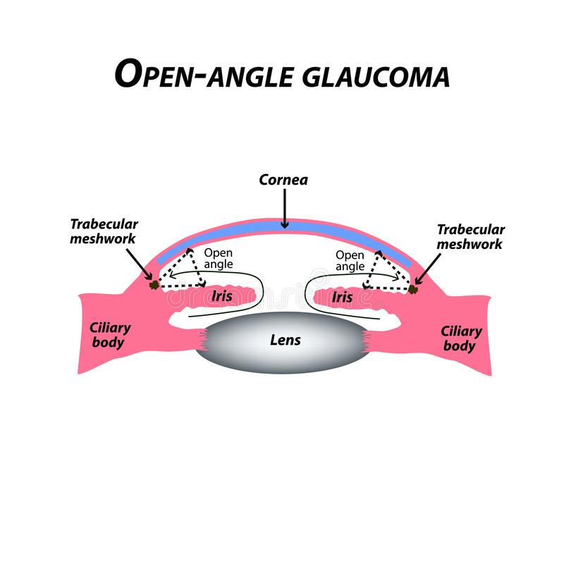 Öppen-vinkel glaukom En gemensam typ av glaukom Den anatomiska strukturen av ögat Infographics också vektor för coreldrawillustra vektor illustrationer