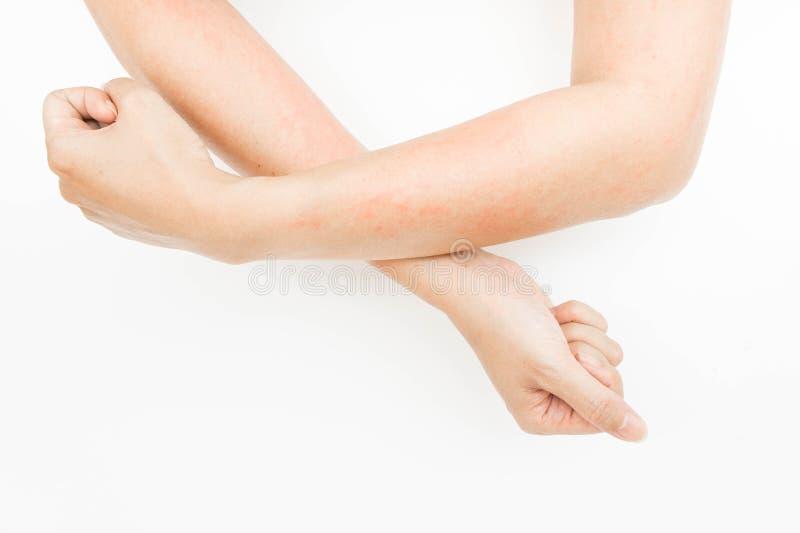 Överilad allergi från att trycka på armar, eksem, dermatit royaltyfria foton
