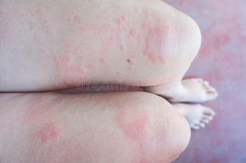 Överilat för hud, Rashes som orsakas av allergiska reaktioner royaltyfri fotografi