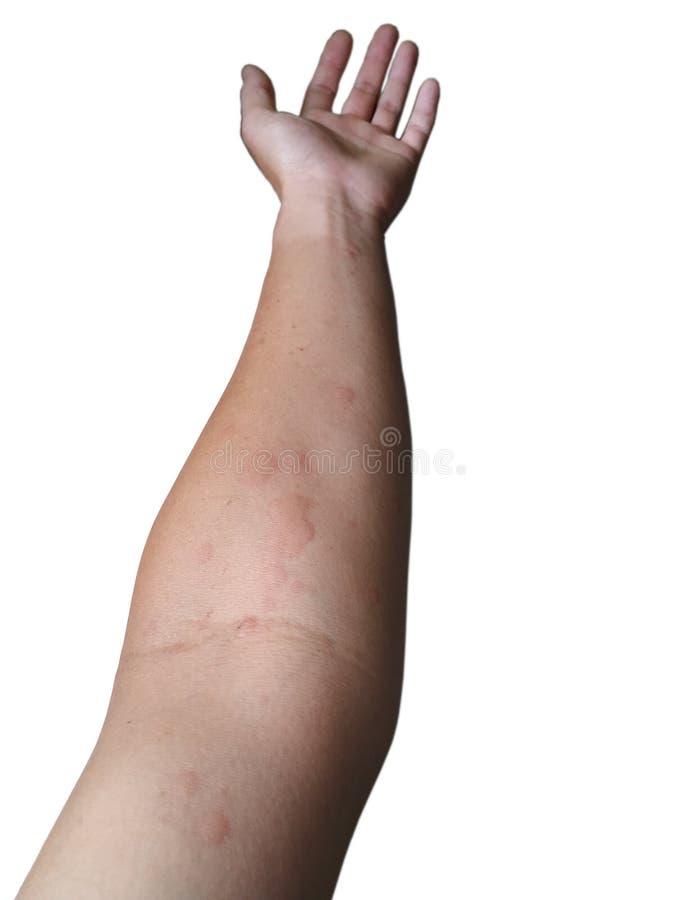 Överilat för hud upp på armen på en vit bakgrund royaltyfri fotografi