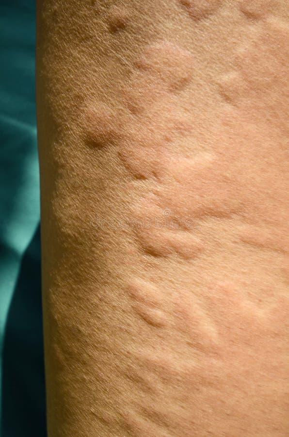 Överilat för hud, Urticaria, allergisk hudreaktion fotografering för bildbyråer