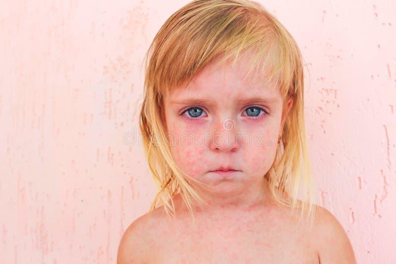 Överilat i barn med roseola arkivbild