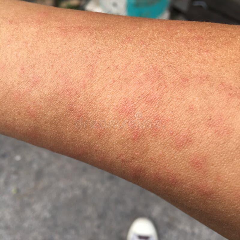 Överilat orsakat av allergisk hud för att svettas, damm och virus royaltyfri foto