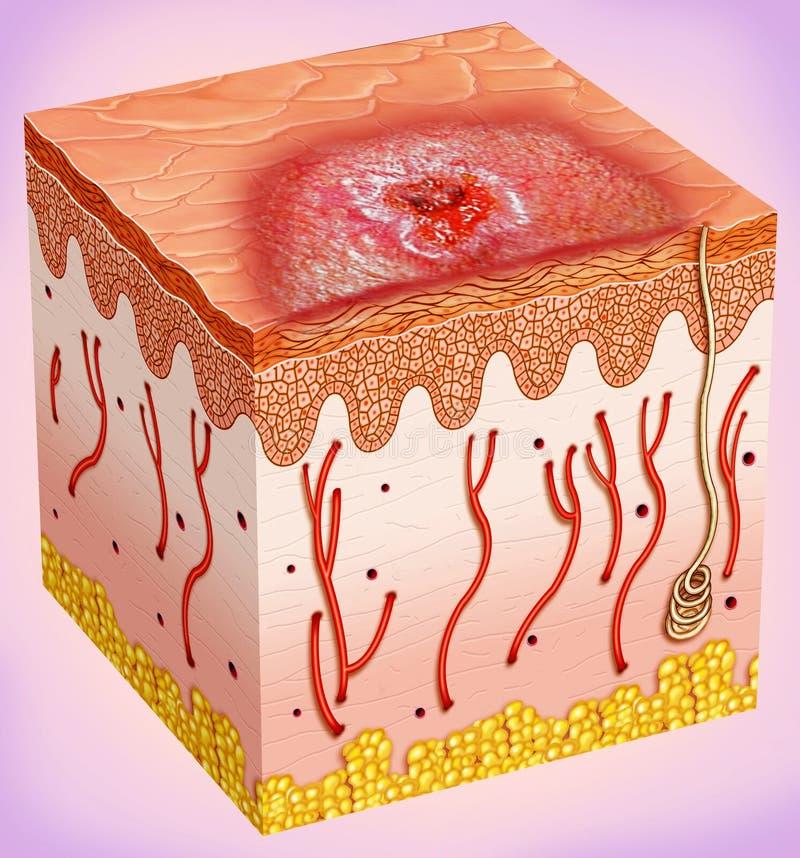 Översikt av en hudcancer vektor illustrationer