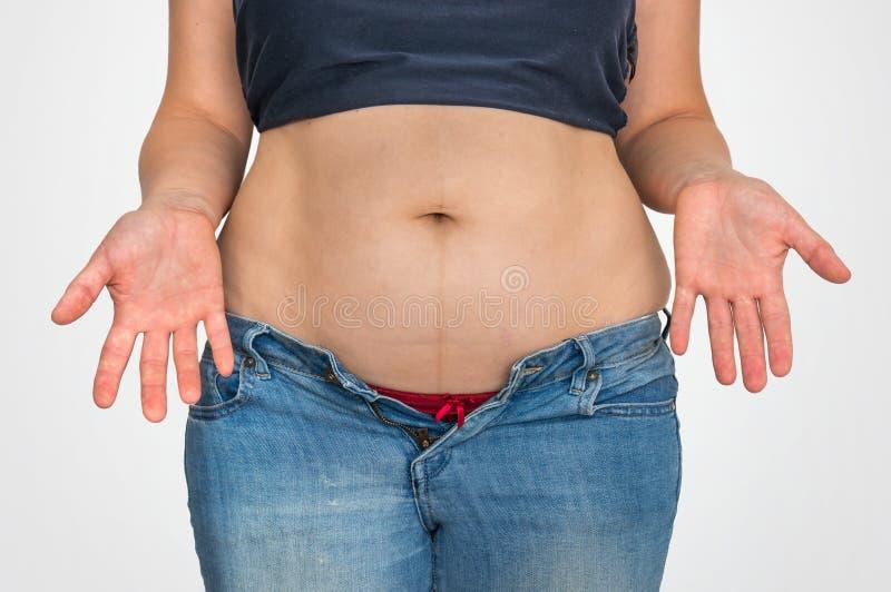 Överviktig kvinnakropp med fett på buken - överviktigt begrepp arkivfoto