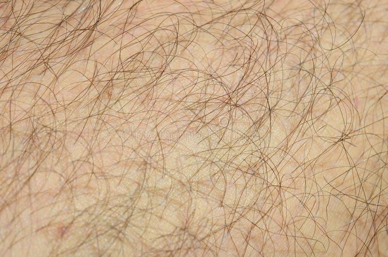Övre detalj för slut av mänsklig hud med hår Bemannar det håriga benet royaltyfria foton