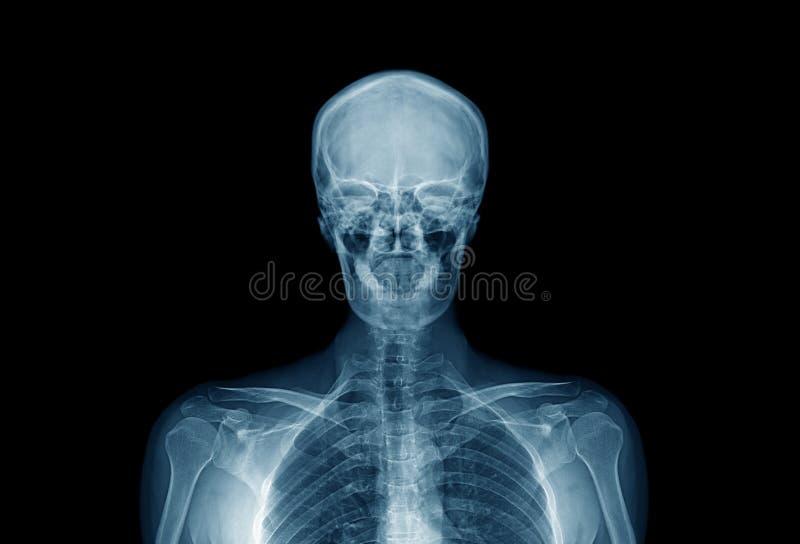 övredel av människokroppen, kvalitets- röntgenstrålebild för höjd av mänskligt in royaltyfri bild
