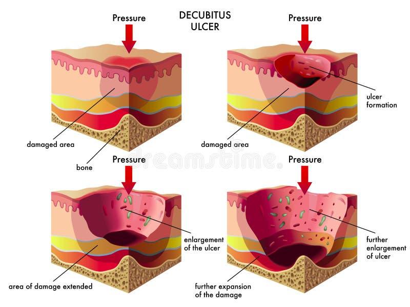Úlcera decúbito ilustración del vector