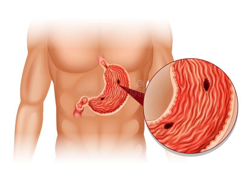 Úlcera estomacal no corpo humano ilustração royalty free
