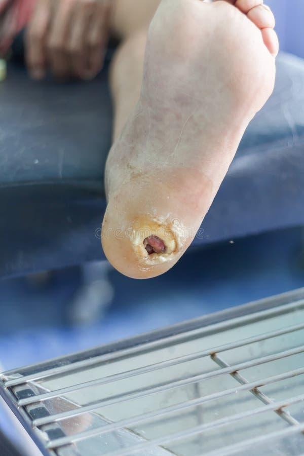 Úlceras de la diabetes, herida infectada del pie diabético imagenes de archivo