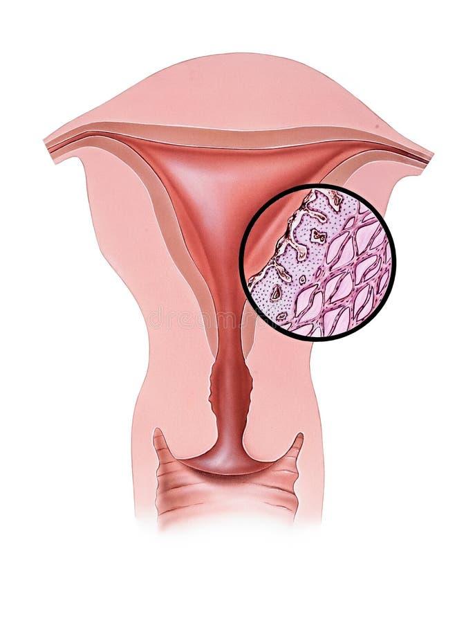 Útero - dor menstrual ilustração stock