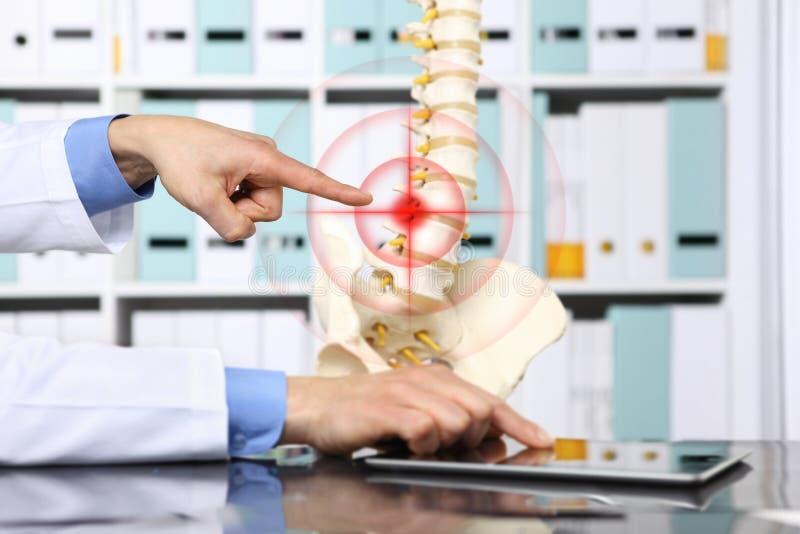 Übergeben Sie Doktor, der das Skelett des Dorns, Hernienkonzeptursachen zeigt stockfoto