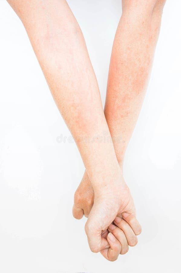 Überstürzte Allergie von rührenden Armen, Ekzem, Dermatitis lizenzfreies stockbild