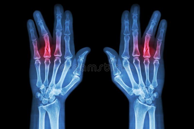 Łama dyszel proximal phalange ringowy palec (ekranowy promieniowanie rentgenowskie oba wręcza AP) zdjęcia royalty free