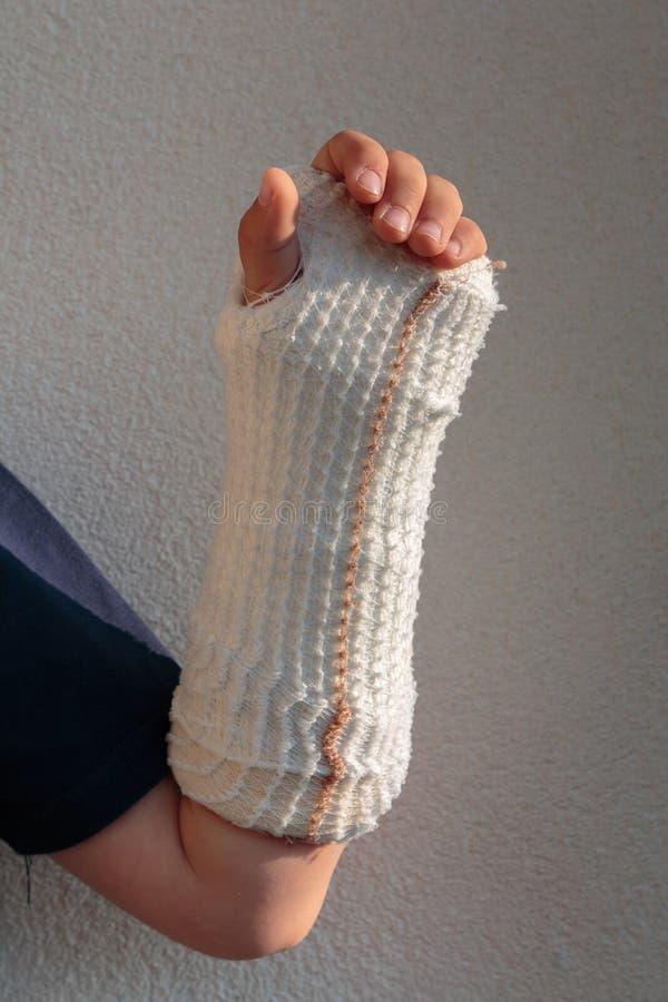 Łamana ręka w gipsie Mała Kaukaska chłopiec zdjęcie stock