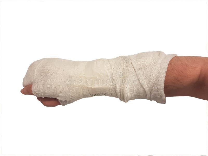 Łamany ręka tynk Prawa ręka samiec odosobniony zdjęcie royalty free