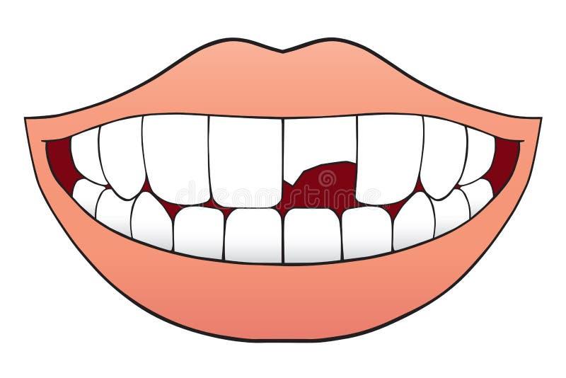 Łamany ząb royalty ilustracja
