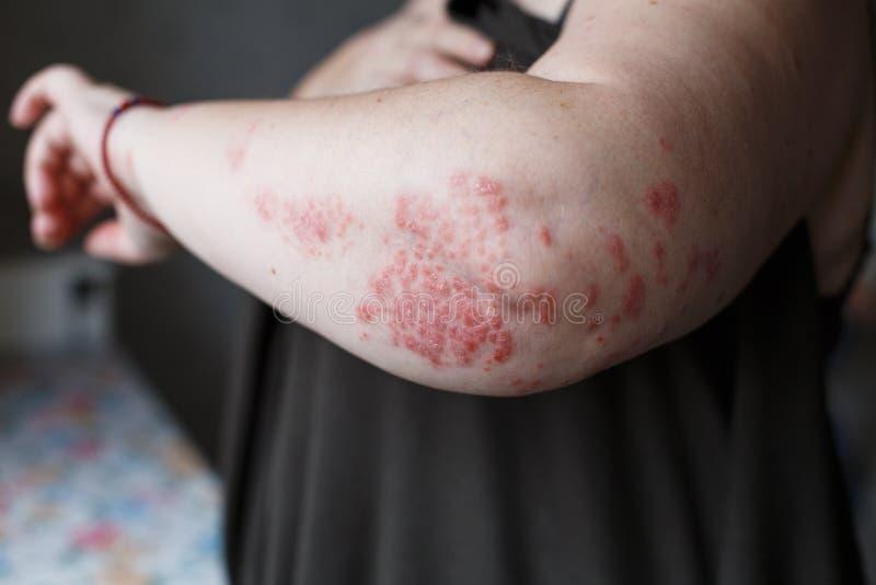 Łuszczyca skóra Łuszczyca jest autoimmune chorobą który wpływa skóry przyczyny skóry rozognienia czerwień i scaly egzema zdjęcia royalty free
