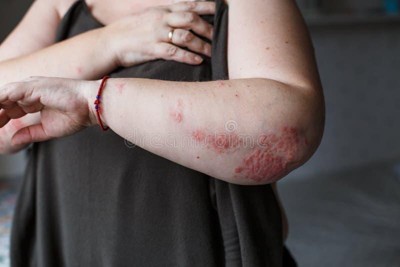 Łuszczyca skóra Łuszczyca jest autoimmune chorobą który wpływa skóry przyczyny skóry rozognienia czerwień i scaly egzema zdjęcie stock