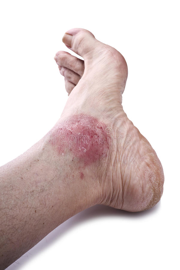 Łuszczyca, skóry choroba zdjęcie royalty free