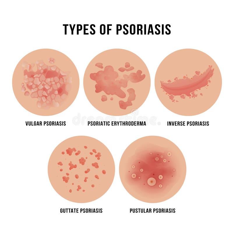 Łuszczyca skóry choroba, typy derma problem ilustracji