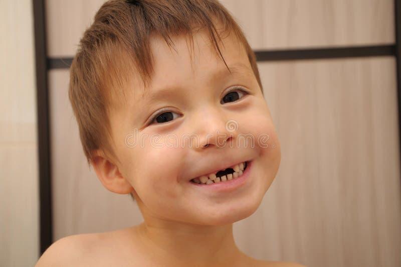 Łydka zębów zmieniać zdjęcie royalty free