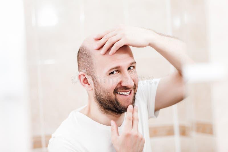 Łysego mężczyzna przyglądający lustro przy kierowniczym baldness i włosianą stratą zdjęcia royalty free