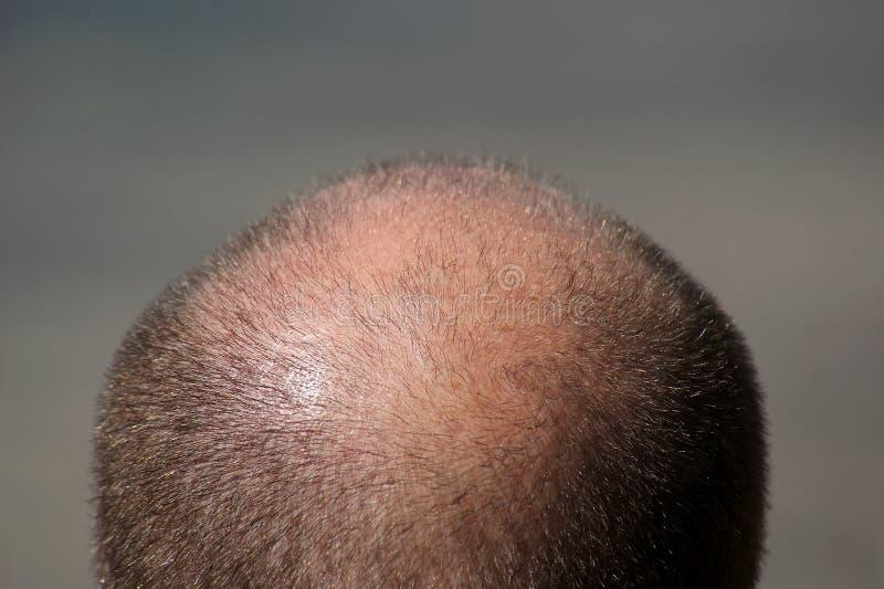 łysienia głowy mężczyzna s fotografia royalty free