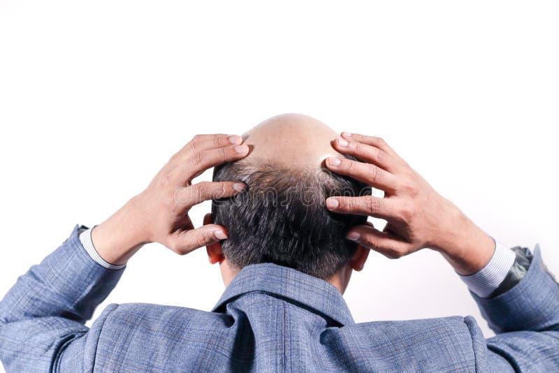 Łysy biznesmen z jego głową na skalpu widoku od behind z wh obrazy royalty free
