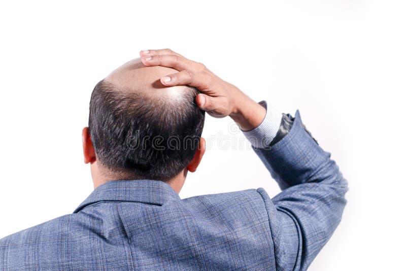 Łysy biznesmen z jego głową na skalpu widoku od behind z wh fotografia stock