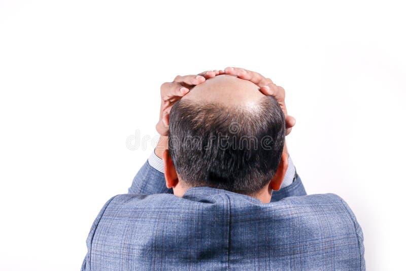 Łysy biznesmen z jego głową na skalpu widoku od behind z wh zdjęcia stock