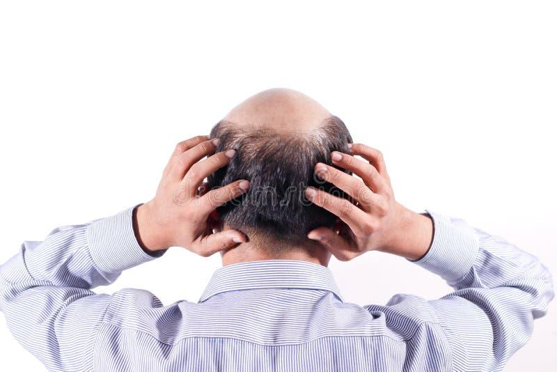 Łysy biznesmen z jego głową na skalpu widoku od behind z wh obraz stock