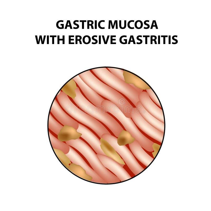 Śluzowy żołądek z erozyjnym gastritis Infographics Wektorowa ilustracja na odosobnionym tle ilustracji