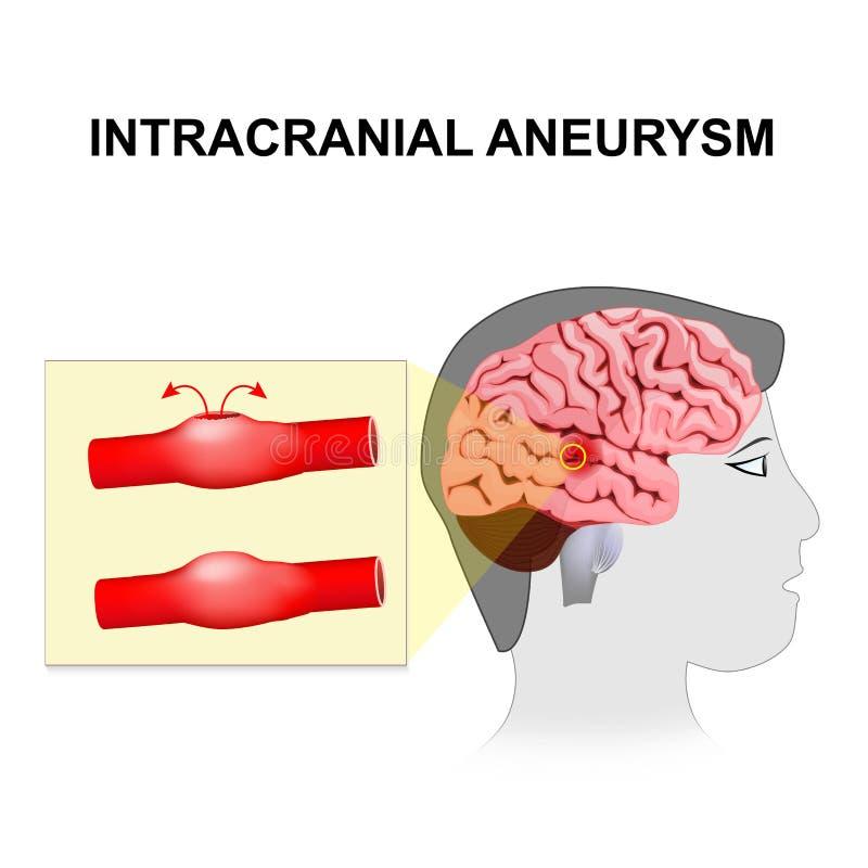 Śródczaszkowy aneurysm cerebralny lub móżdżkowy aneurysm ilustracji