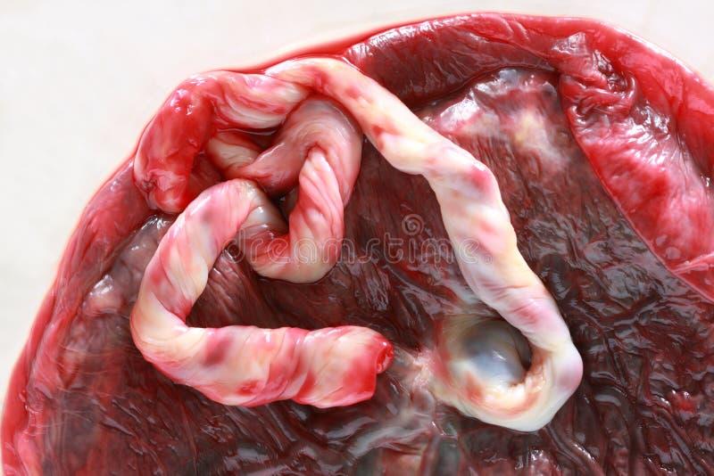 świeża ludzka placenta fotografia royalty free