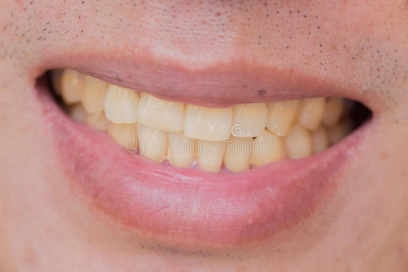 Żółci zęby w samiec od dymu i kawy zdjęcia royalty free