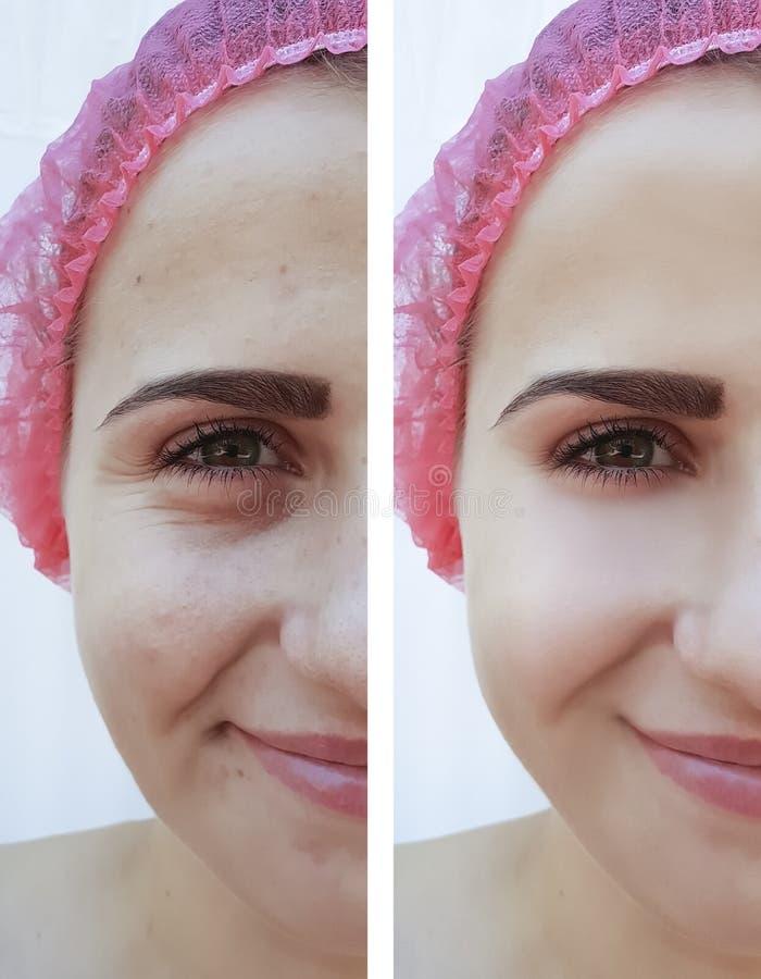Żeńscy oczu zmarszczenia przed i po traktowanie kosmetologią zdjęcie royalty free