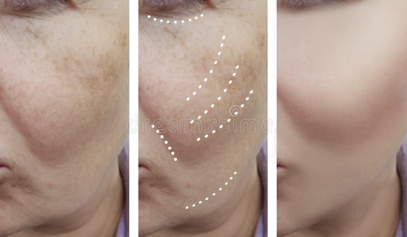 Żeńscy twarzowi zmarszczenia przed i po procedurami zdjęcie royalty free