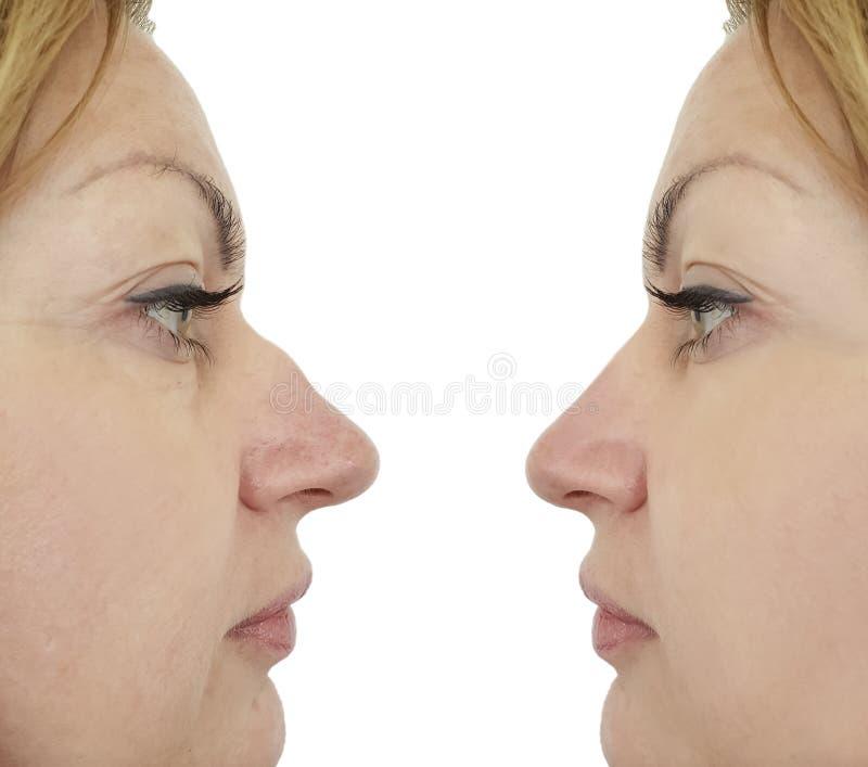 Żeńska nosa garbu korekcja przedtem po procedur obraz stock