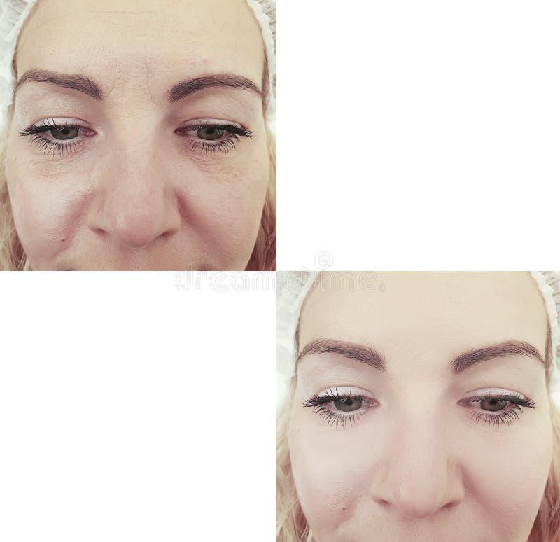 ?e?ska twarz marszczy rezultaty przed i po antiaging procedurami, skutek zdjęcia stock